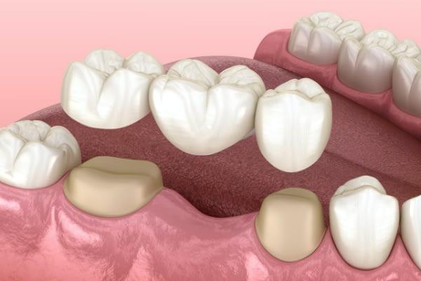 عيادة تركيب الأسنان